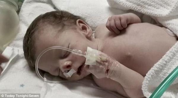 3Д Печатная модель черепа спасает австралийского ребенка, нос которого был заблокирован костью